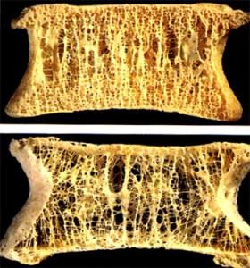 osteoporoza3